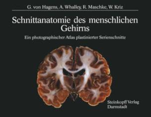 Schnittanatomie des menschlichen Gehirns