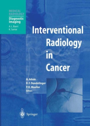 Interventional Radiology in Cancer