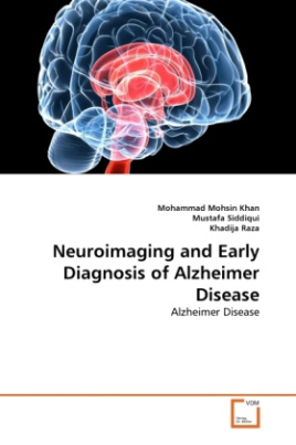 Neuroimaging and Early Diagnosis of Alzheimer Disease